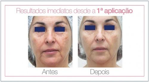 leila_e_gisele_hidratação_facial_fios_de_seda_02